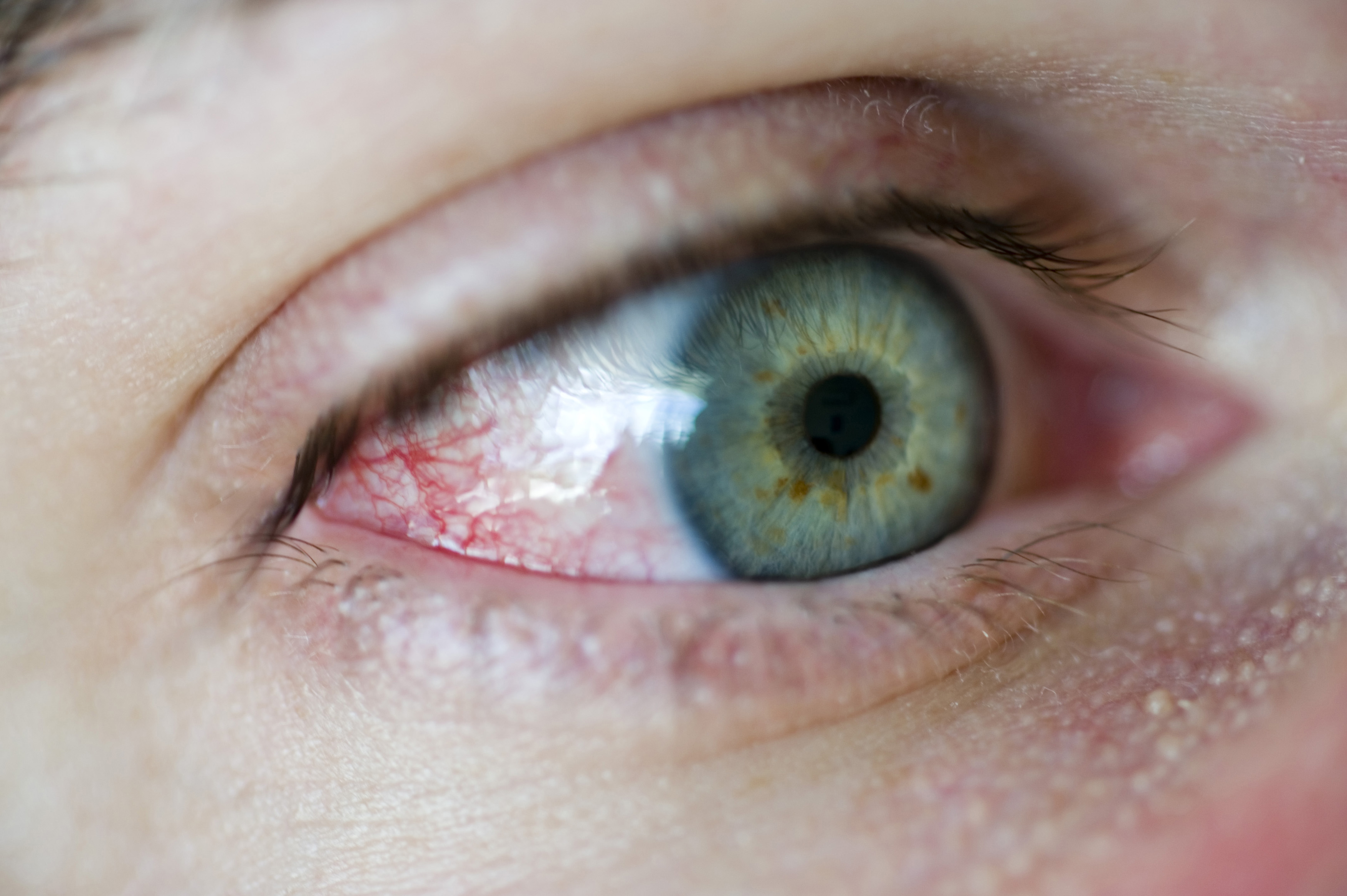 Close up detail of the human eye showing a network of tiny blood vessels in the corner and a green iris, looking away from the camera